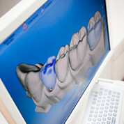 Dentist in Miami Same Day digital dentistry