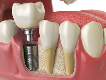 Restoring Missing Teeth With Dental Implants