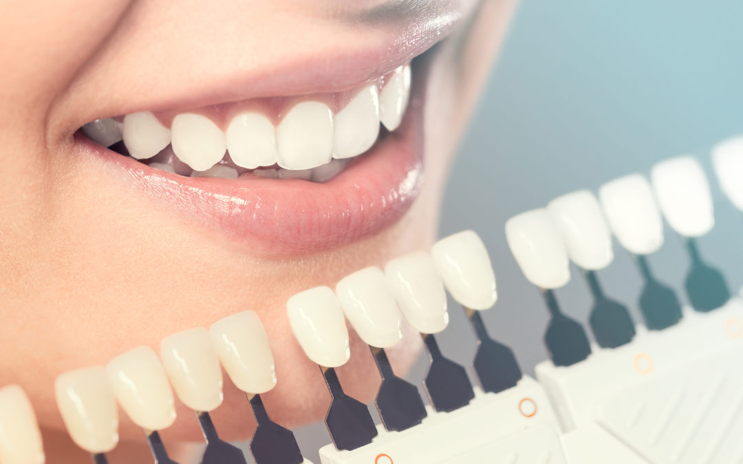 What are porcelain crowns and how do they work?