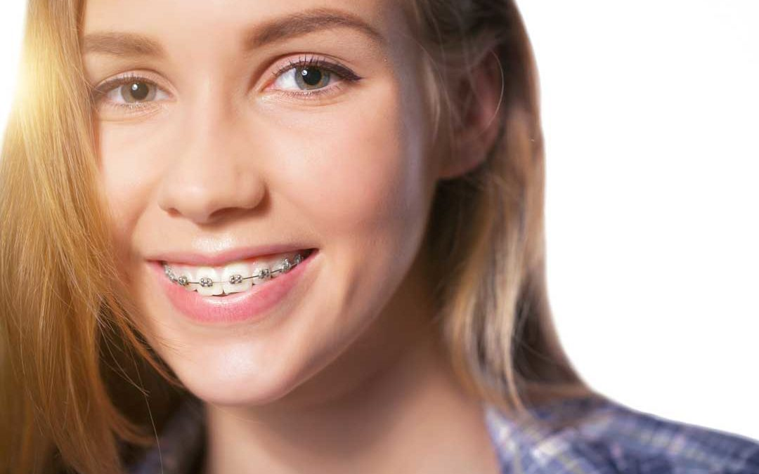 Benefits of Orthodontics in Miami Lakes