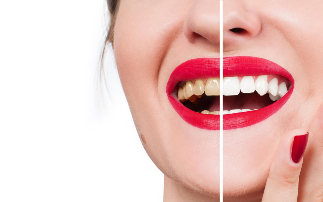 Benefits of Teeth Whitening in Miami