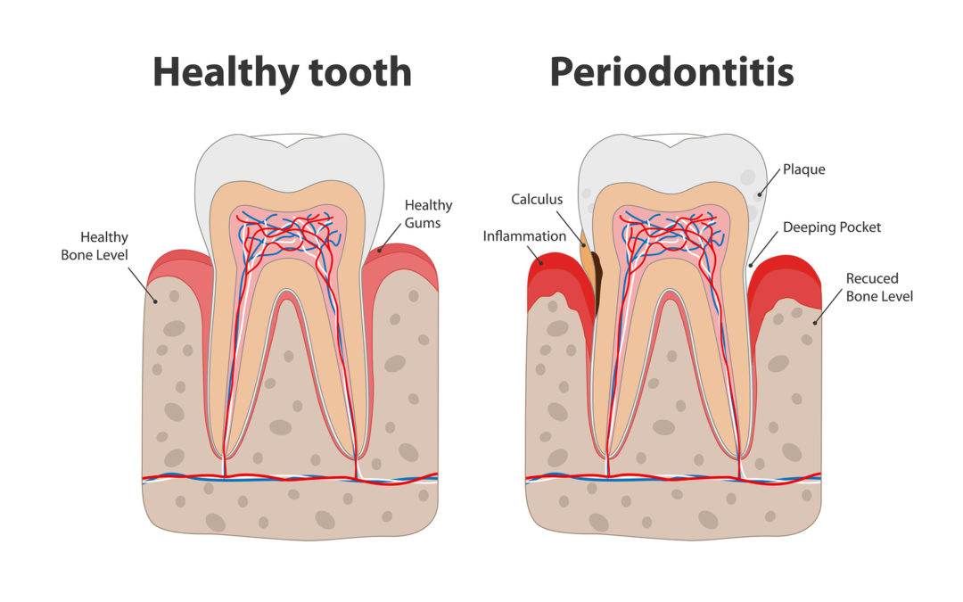 What are some secondary effects of Periodontitis?