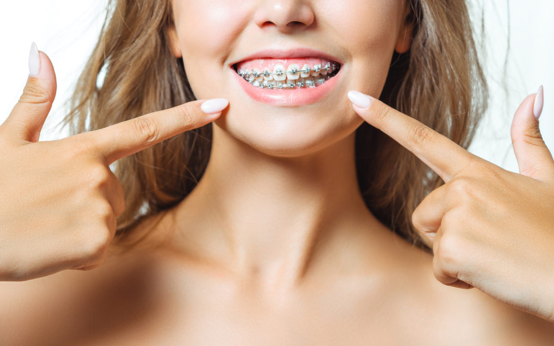 Ortho and Braces in Miami